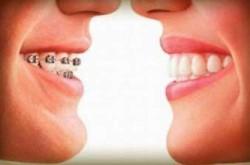 plano-odontologico-butanta1394555843